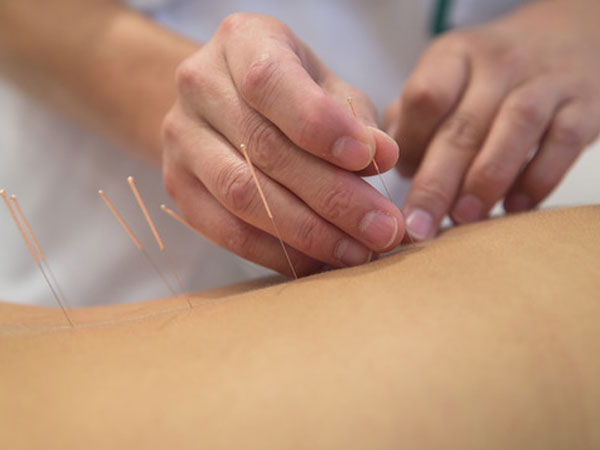 Acupuncture Gold Coast